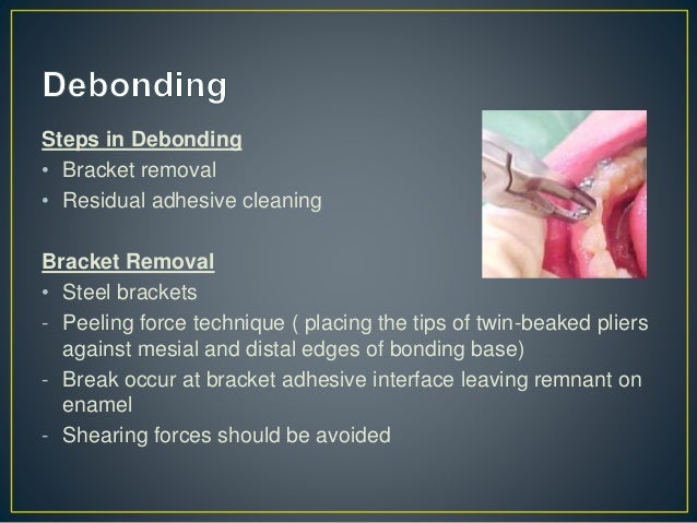 Residual Adhesive Cleaning • Methods - Use of handpiece with tungsten carbide bur (30,000rpm) - High speed handpiece with ...