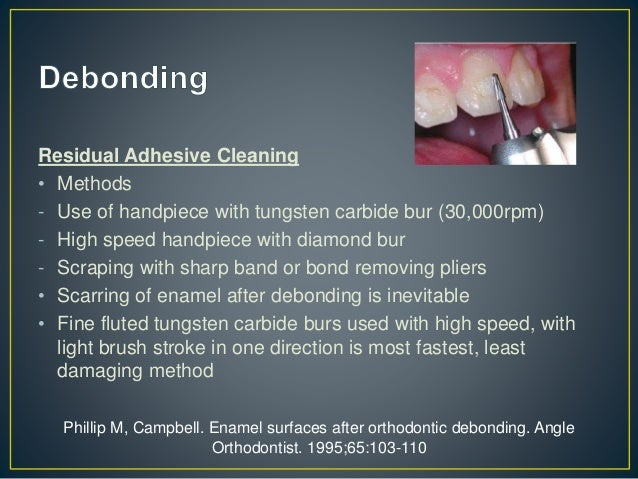 • ENAMEL CRACKS • Generally are not visible on intra oral photographs • Fiber optic transillumination According to Zachris...