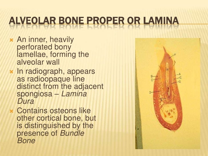 alveolar bone Alveolar bone loss may be mild, moderate, or severe, depending on the severity and chronicity of periodontitis (figures 5-3, 5-4, and 5-5)in an individual patient, the significance of the bone loss will depend on the amount.