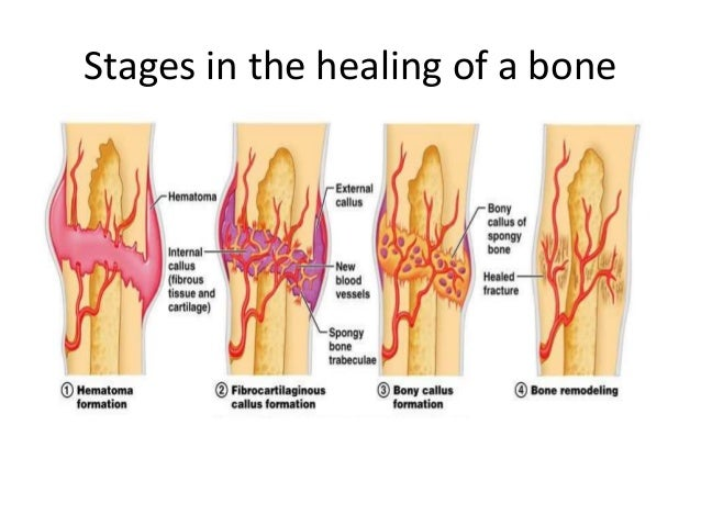 bone callus formation – citybeauty, Muscles