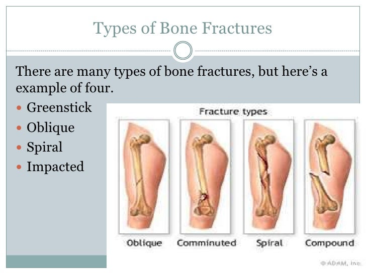Funky Different Types Of Bone Fractures Mold - Anatomy And ...