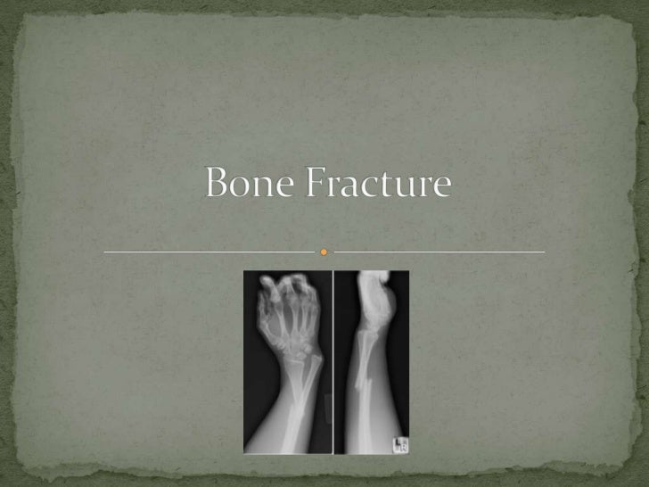  a damage to the bone that causes it to break it could be abbreviated as FX or Fx fracture could be caused by high forc...