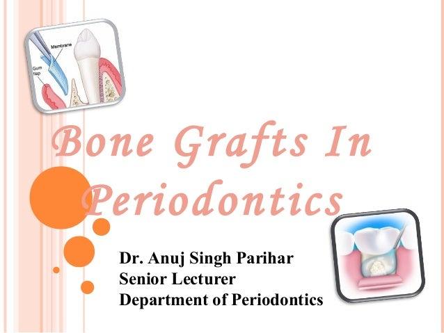 Bone Grafts In Periodontics Dr. Anuj Singh Parihar Senior Lecturer Department of Periodontics