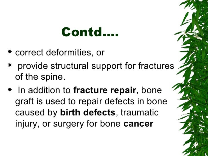 Bone grafting Slide 3