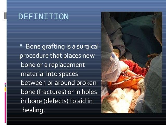Bone grafting1 Slide 2