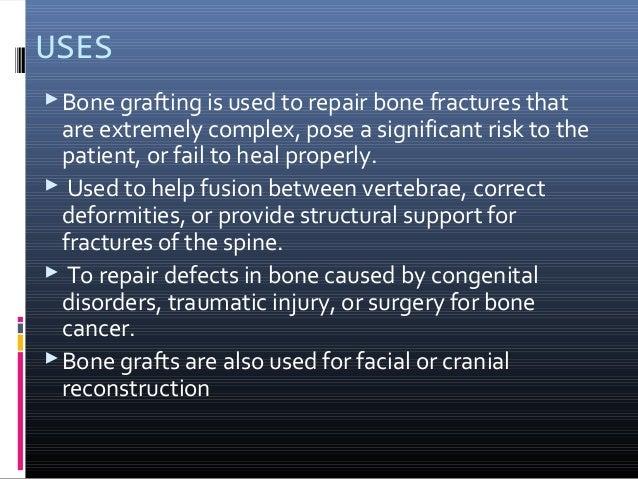 Bone grafting1 Slide 3