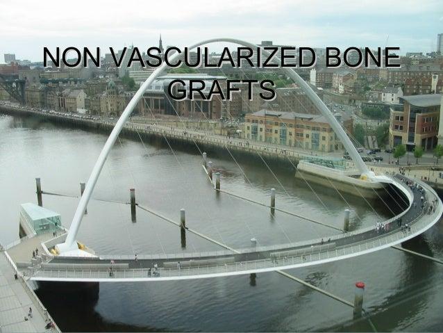 NON VASCULARIZED BONENON VASCULARIZED BONE GRAFTSGRAFTS