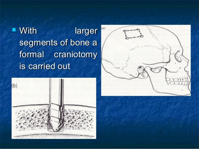  With largerWith larger segments of bone asegments of bone a formal craniotomyformal craniotomy is carried outis carried ...