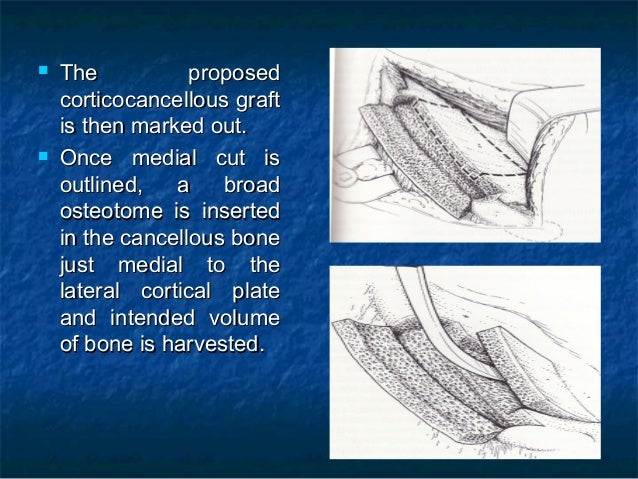  The proposedThe proposed corticocancellous graftcorticocancellous graft is then marked out.is then marked out.  Once me...
