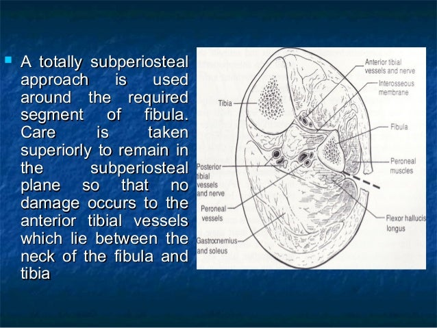 After the medial aspect of the fibula has been protectedAfter the medial aspect of the fibula has been protected with ma...