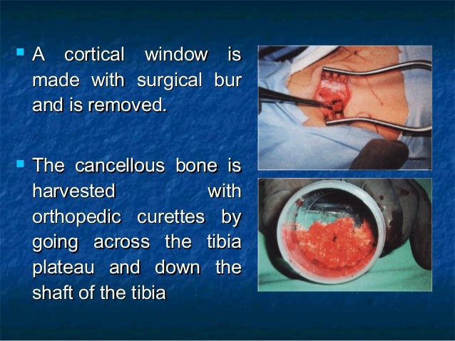  Once the bone harvest is completed,Once the bone harvest is completed, hemostasis is checked.hemostasis is checked.  Th...