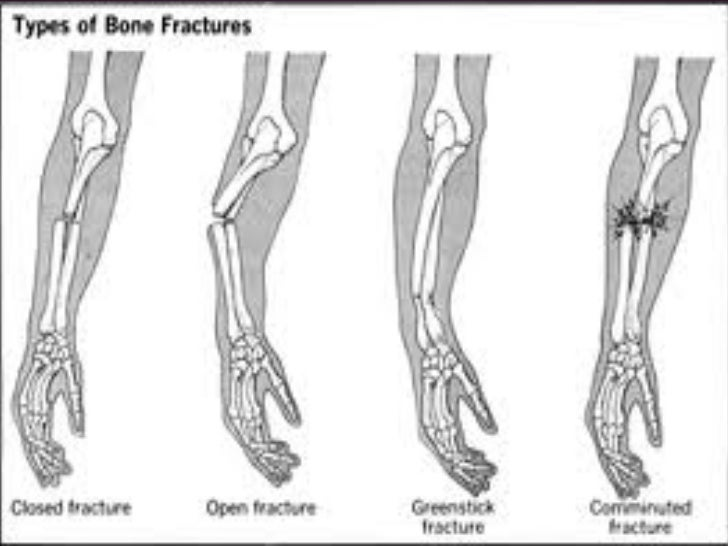 Bone Dislocation  Bone dislocation occurs when theend of the bone is forced out isnormal position in a joint.  Signs of di...