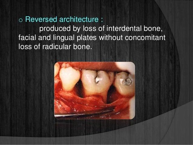 How To Reverse Bone Loss Around Teeth - Teeth Poster