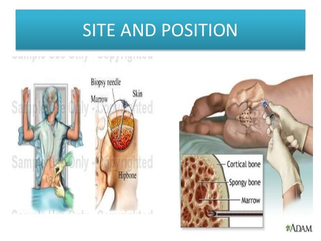 bone marrow aspiration, Skeleton