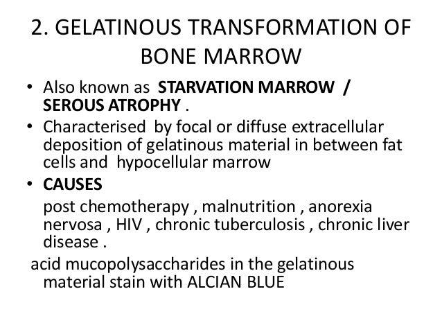 Normal bone marrow biopsy