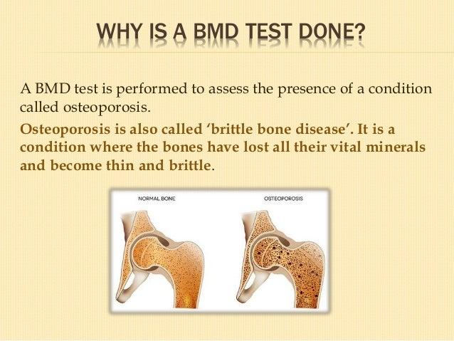 Cuboid bone Thickness T-Score