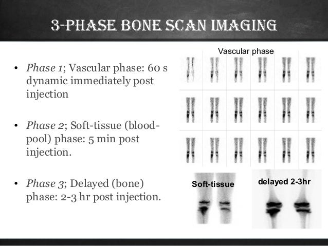 how to read a bone scan