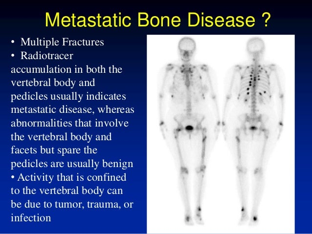 an overview of bone diseases