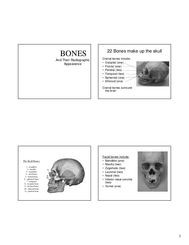 BONES And Their Radiographic Appearance  22 Bones make up the skull Cranial bones include: • Occipital (one) • Frontal (on...
