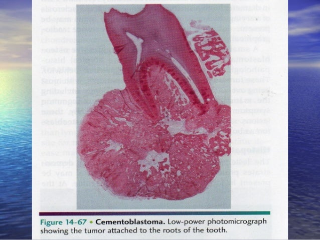 Hemangioma of bone. Note numerous vascular channelsHemangioma of bone. Note numerous vascular channels surrounded by trabe...