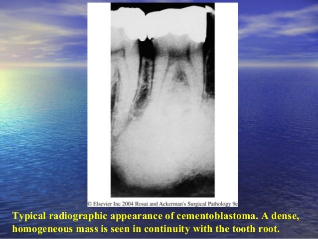 A, Central low-grade osteosarcomaA, Central low-grade osteosarcoma of the mandible.of the mandible.