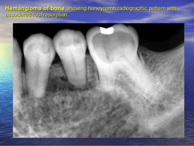 OsteosarcomaOsteosarcoma between a mandibular lateral incisor and a canine. Note slightbetween a mandibular lateral inciso...