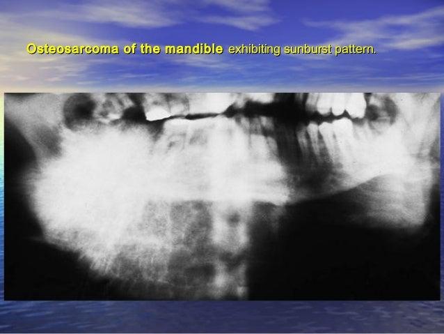 Midline granulomaMidline granuloma presenting as oropharyngeal ulcers.presenting as oropharyngeal ulcers.