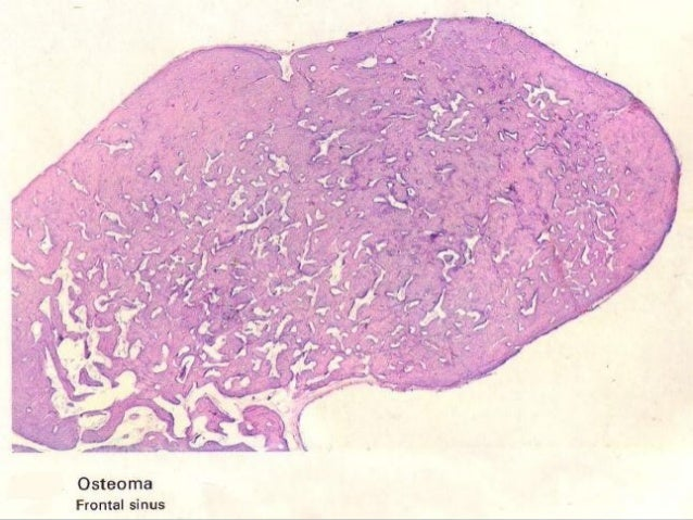 Gardner syndrome . A segment of resected largeGardner syndrome . A segment of resected large bowel showing polyp formation...
