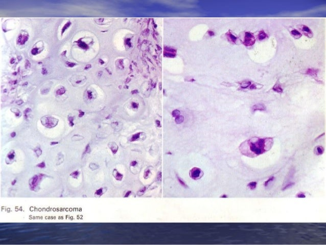 Bone tumor alrafdain dina patho