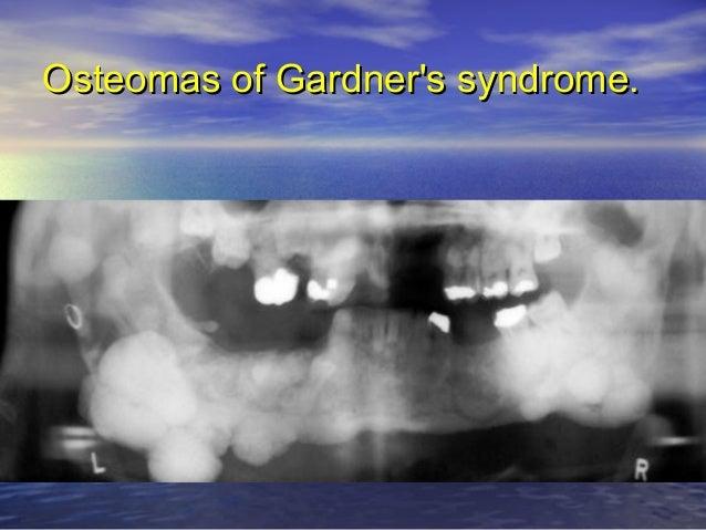 Radiograph illustrating mandibular benign osteoblastoma or cementoblastoma without calcification that was associated with ...