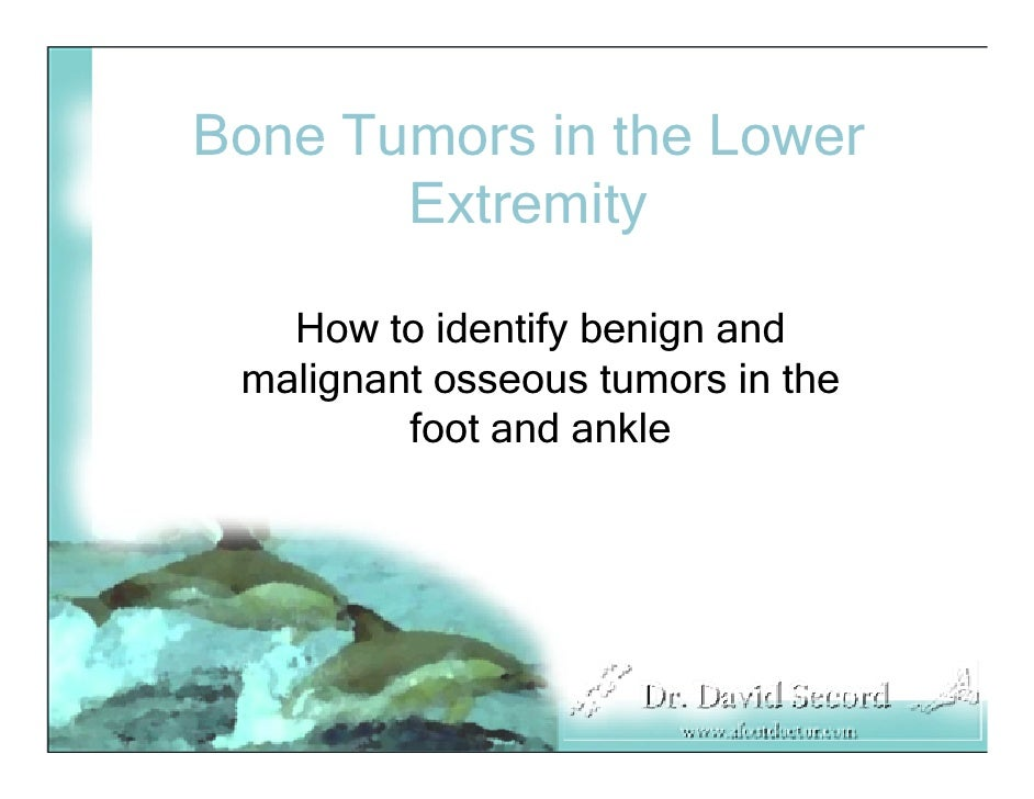 Bone Tumors in the Lower        Extremity     How to identify benign and  malignant osseous tumors in the          foot an...