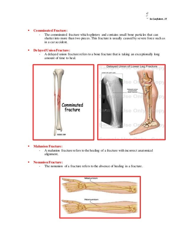 muscle and fracture types bone Home » patient info » fractures and trauma patient info types of fractures forearm bones may break in many ways tendinitis: it is an inflammation of a tendon, a tissue that connects muscles to bone.