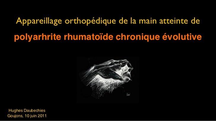 Appareillage orthopédique de la main atteinte de   polyarhrite rhumatoïde chronique évolutiveHughes DaubechiesGoujons, 10 ...