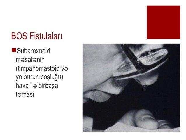 BOS fistulaları Slide 2