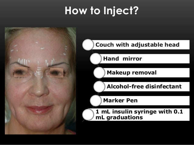 where can you inject botox