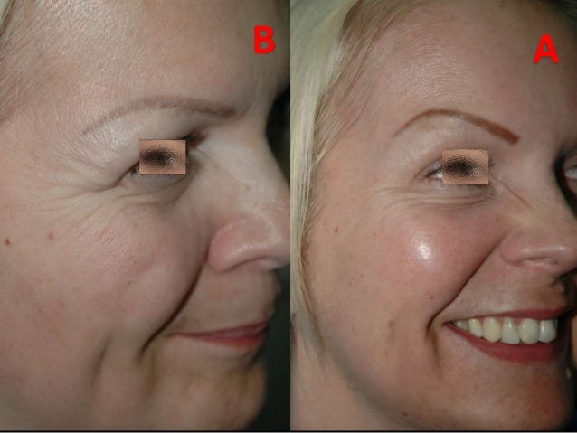 The Art Of Liquid Face Lift Botox