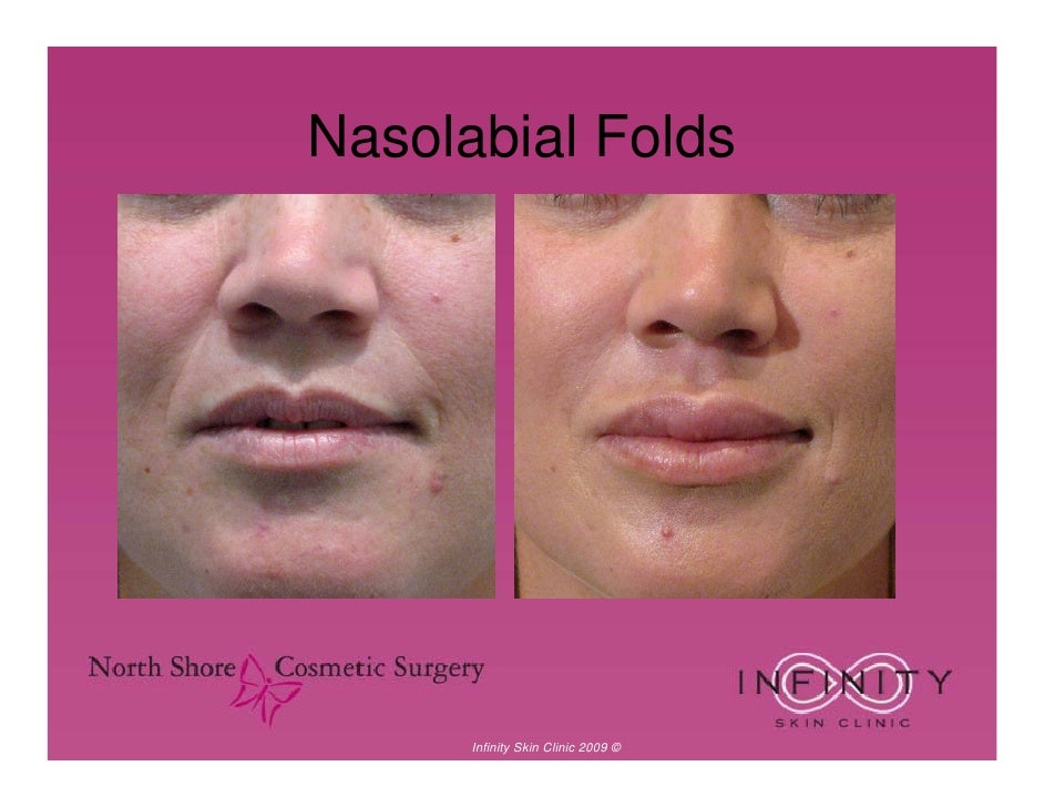 Botox Amp Dermal Fillers 10 Years Younger