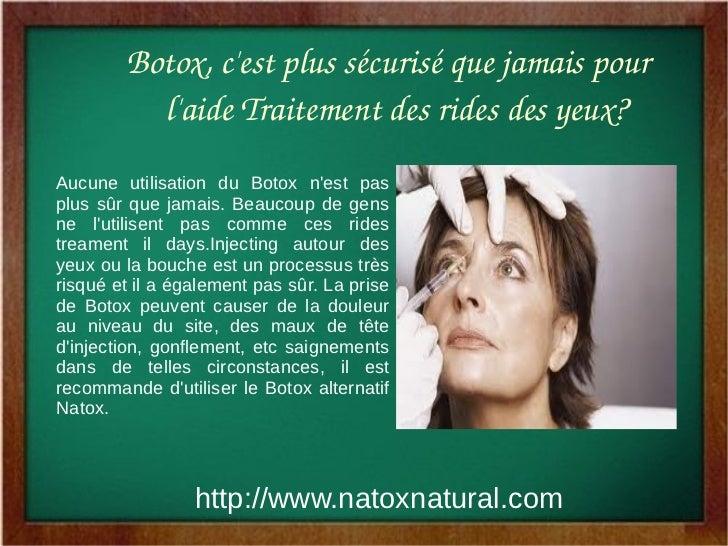 Botox,cestplussécuriséquejamaispour          laideTraitementdesridesdesyeux?Aucune utilisation du Botox nest p...
