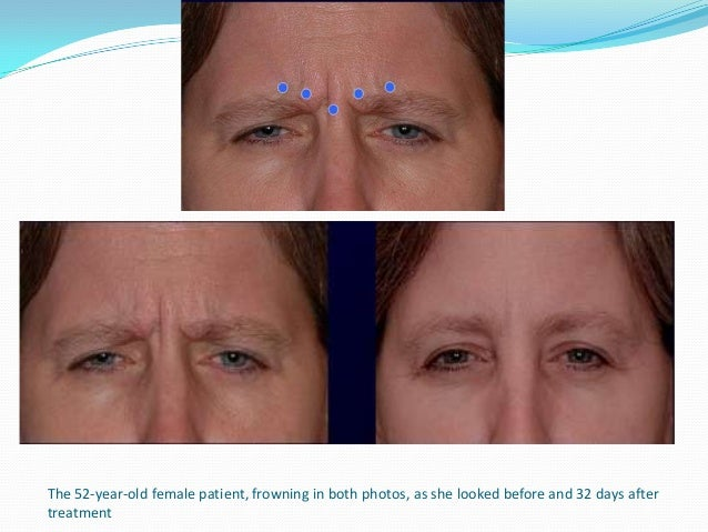 Patient depicted 17 days after treatment for crow's feet. Smiling without crow's feet wrinkles.