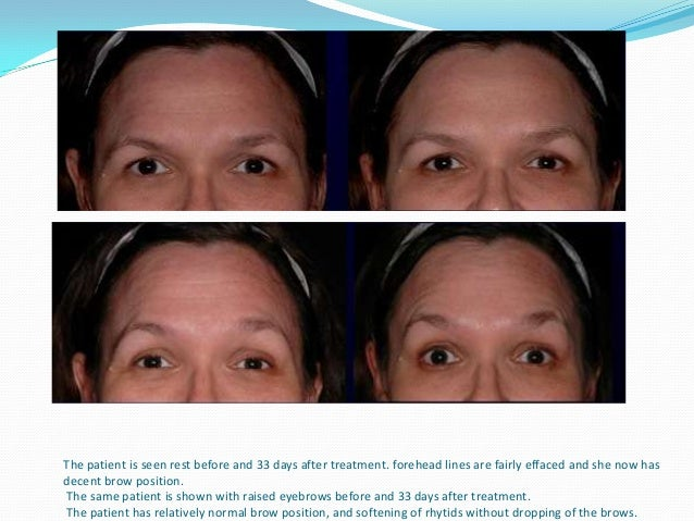 """The patient shown 17 days after treatment for bunny lines, with good result. Patient expression alternates from rest to """"s..."""