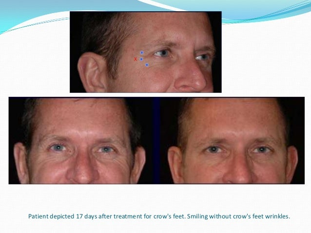 The patient is shown alternating from rest to full expression 17 days after treatment of the chin. After treatment she is ...