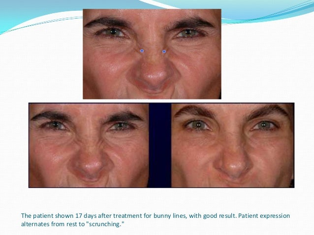 The patient shown in full expression before and 17 days after treatment. Anterior vertical bands have disappeared.