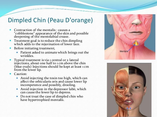 Marionette Lines/ Depressed anguli oris (DOA)  Contraction of the depressor anguli oris or DAO. Deep marionette lines giv...
