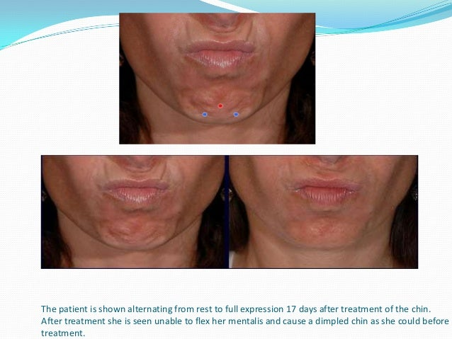 The patient is shown in the photo, in full expression, 28 days after treatment to her DAO. Neurotoxin treatment effectivel...