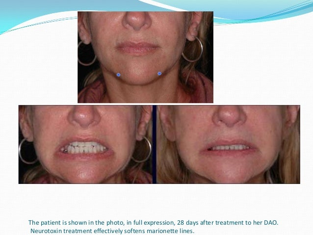 Precautions after botulinum toxin injection  Pt. should be instructed to contract the injected area for  approximately 90...