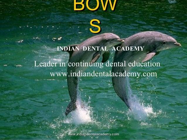 BOWBOW SS www.indiandentalacademy.comwww.indiandentalacademy.com INDIAN DENTAL ACADEMY Leader in continuing dental educati...