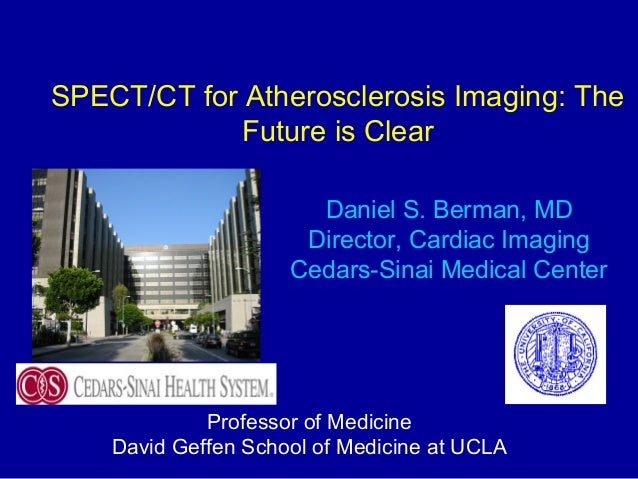 SPECT/CT for Atherosclerosis Imaging: The Future is Clear Daniel S. Berman, MD Director, Cardiac Imaging Cedars-Sinai Medi...