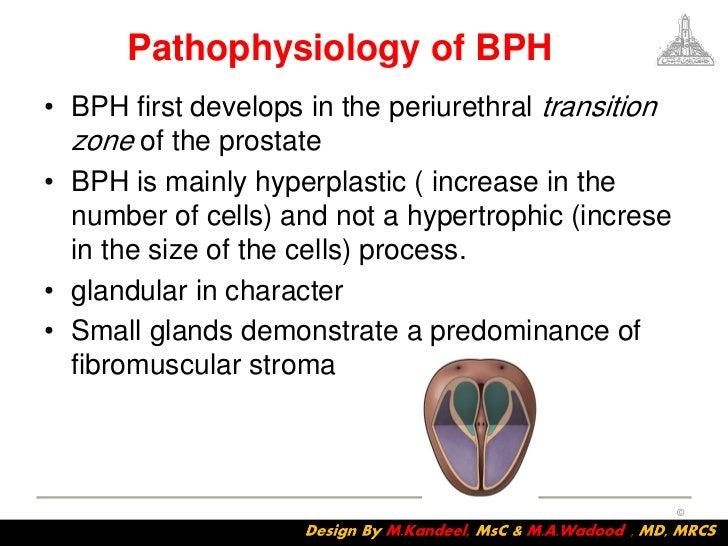 Benign prostatic hyperplasia Nursing Crib