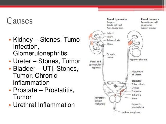 Benign Prostatic Hypertrophy, Prostatitis and Hematuria