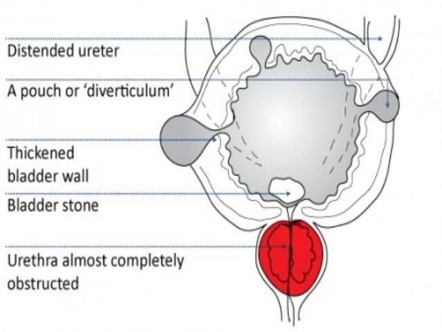 Plaquenil induced neuropathy